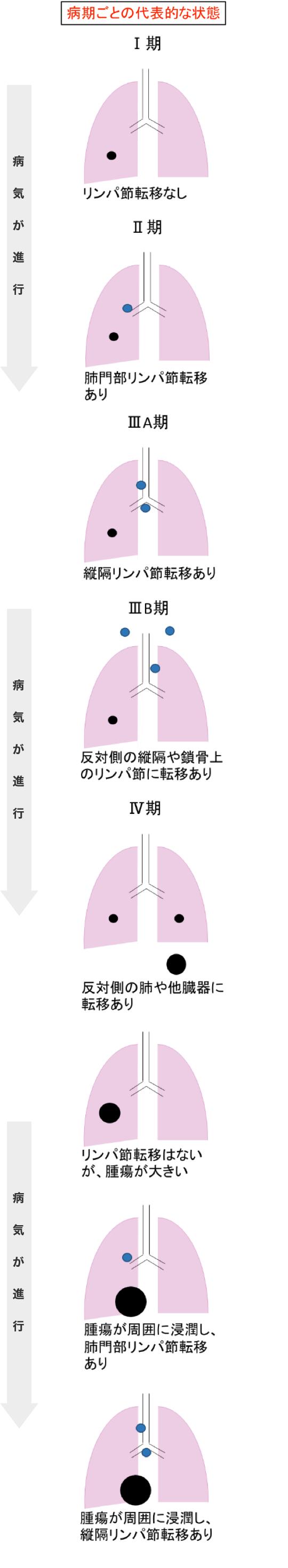 4 肺がん ブログ ステージ