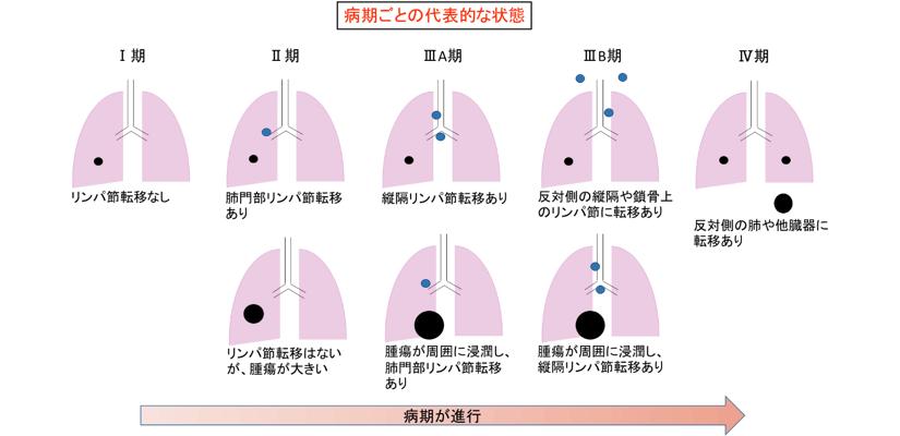 「肺がん、ステージ3」の画像検索結果